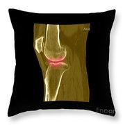 Knee Showing Osteoporosis Throw Pillow
