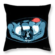 Non-hodgkins Lymphoma Throw Pillow