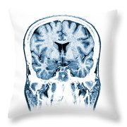 Normal Coronal Mri Of The Brain Throw Pillow