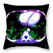 Metastatic Disease Of The Lungs Throw Pillow