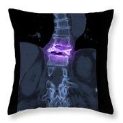 Severe Osteoporosis Throw Pillow