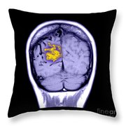 Mri Of Arterial Venous Malformation Throw Pillow