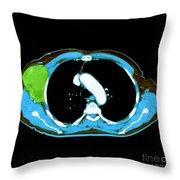 Non-hodgkins Lymphoma Throw Pillow