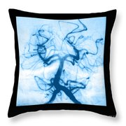 Angiogram Of Embolus In Cerebral Artery Throw Pillow