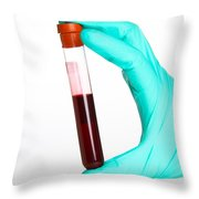 Blood Samples Throw Pillow by Photo Researchers