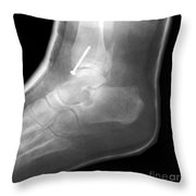 Broken Ankle Throw Pillow
