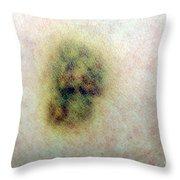 Bruise Throw Pillow