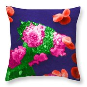 Cancer Cell Death, Sem 3 Of 6 Throw Pillow