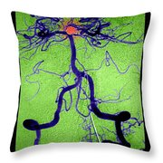 Cerebral Angiogram Throw Pillow