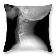 Cervical Spine Throw Pillow