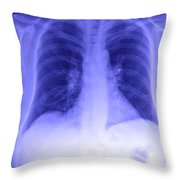 Chest X-ray Throw Pillow