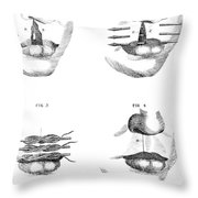 Cleft Lip Surgery, 1791 Throw Pillow