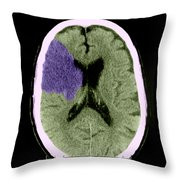 Ct Of Stroke Throw Pillow