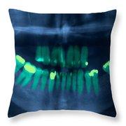Dental X-ray Throw Pillow