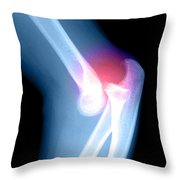 Elbow Injury Throw Pillow