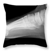 Flat Foot Throw Pillow
