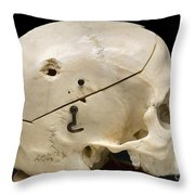 Gunshot Trauma To Skull, 1950s Throw Pillow