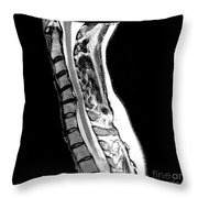Herniated Disc In Cervical Spine Throw Pillow