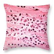 Histopathology Of Typhoid Fever Throw Pillow