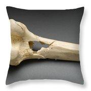 Human Distal Femur, Gunshot Wound, 1984 Throw Pillow