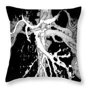 Human Kidneys Throw Pillow