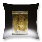 Kidney, Stab Wound, 1937 Throw Pillow