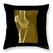 Knee Showing Osteoporosis Throw Pillow by Medical Body Scans
