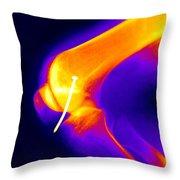 Knee X-ray Throw Pillow