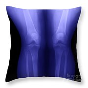 Knees Throw Pillow