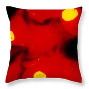 Lm Of Chlamydia Trachomatis Infection Throw Pillow