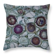 Lm Of Cystopus Albicans Throw Pillow