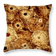 Lm Showing Human Tibia Throw Pillow
