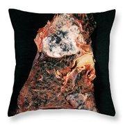 Lung Cancer Throw Pillow