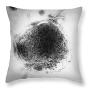 Measles Virus Throw Pillow by Science Source