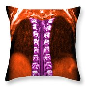 Mri Of Normal Thoracic Spinal Cord Throw Pillow