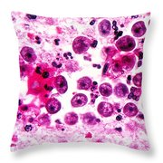 Naegleria Fowleri, Lm Throw Pillow