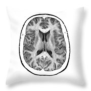 Normal Cross Sectional Mri Of The Brain Throw Pillow
