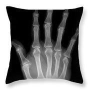 Osteoporosis And Degenerative Arthritis Throw Pillow