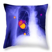 Pacemaker Throw Pillow