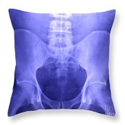 Pelvic X-ray Throw Pillow