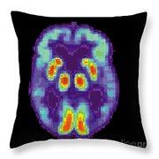Pet Scan Of Alzheimers Disease Brain, 2 Throw Pillow