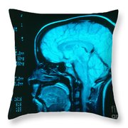 Radiology Angiography Of Brain Throw Pillow