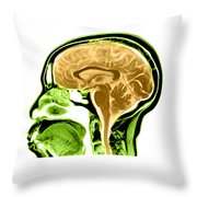 Sagittal View Of An Mri Of The Brain Throw Pillow