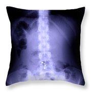 Scoliosis Throw Pillow