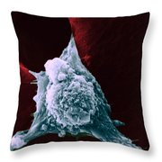 Sem Of Metastasis Throw Pillow by Science Source