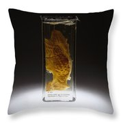 Stomach, Hemorrhagic Gastritis, Arsenic Throw Pillow