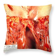 Subacute Bacterial Endocarditis Throw Pillow