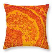 The Effects Of Hiv On Human Lung Tissue Throw Pillow