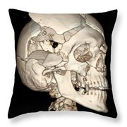 Three-dimensional Ct Reconstruction Throw Pillow