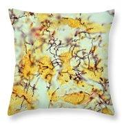 Treponema Pallidum Spirochetes Throw Pillow
